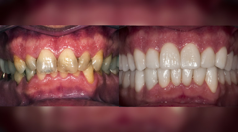 Mastering Full Mouth to Full Arch Rehab course tile image
